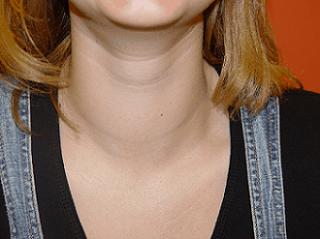 Hypothyroidism and Kale